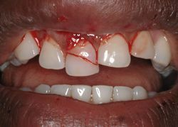 tooth trauma